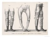 Bow Legs and Their Treatment with Apparatus Intended to Straighten Them - Langlume